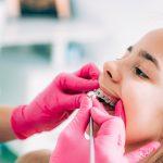 Il est impossible d'assurer des appareils dentaires d'une valeur de 2000 euros ? Pas question !
